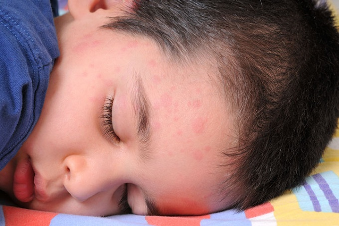 Hives-Or-Urticaria-In-Children