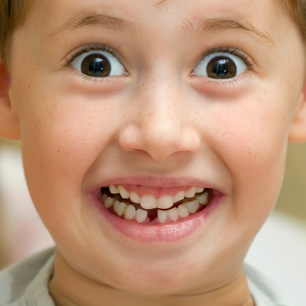 Boy smiling without one teeth